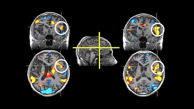 """Strokes, or """"brain attacks"""" can permanantly—and fatally—affect parts of the brain, as seen in these scans."""