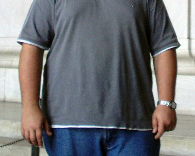 Mississippi has the highest obesity rates in the United States.
